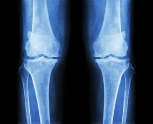 How To Decrease Risk of Osteoarthritis With 2 Simple Changes